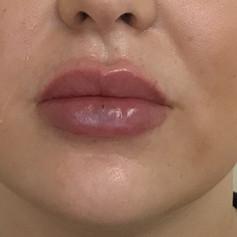 Fuller lips after