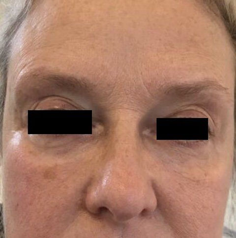 Under eye hollows. Filled and smoothed out  using 2.5ml of filler.jpeg