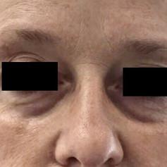 Under-eye hollows before
