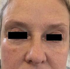 Under-eye hollows after