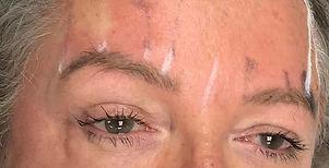 Advanced skin tightening procedure.jpg