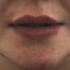 Lip filler after