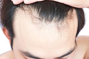 A man tilting his head forward to reveal a receding hairline.jpg