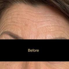 Eyebrow treatment before