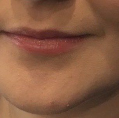 Lip fillers before