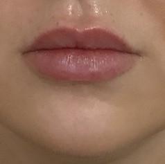 Fuller lips before
