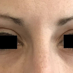 Brow treatment after