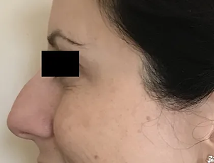 Facial line softening treatment.webp