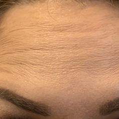Forehead lines after