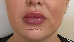 A plump pout after fillers.jpg