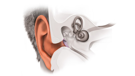 Go for regular hearing evaluation, expert says