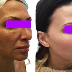 Aptos Exelence Visage HA,Botox