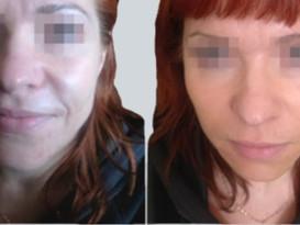 Botox,Fillers Behandling