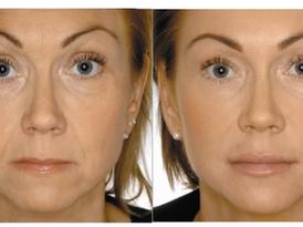 Filler & Botox