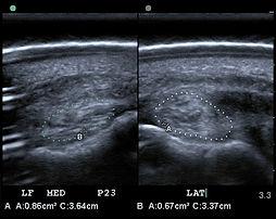 ultrasound 2.jpg