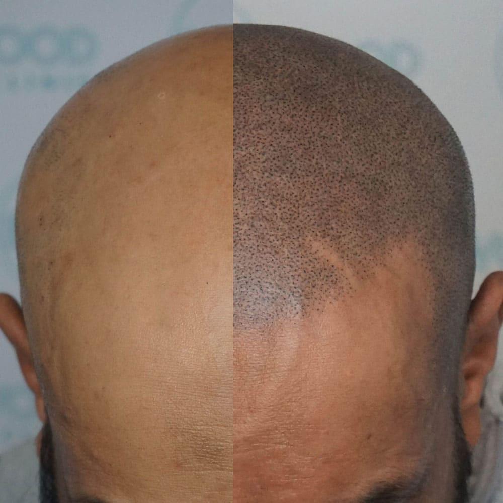 Micropigmentação Capilar - Masculina
