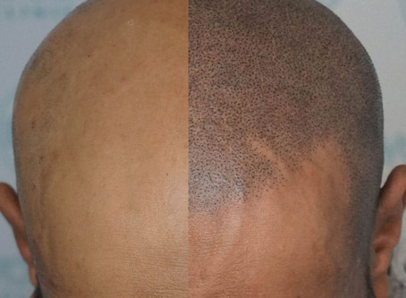 Micropigmentação capilar: Conheça o tratamento alternativo à calvície.