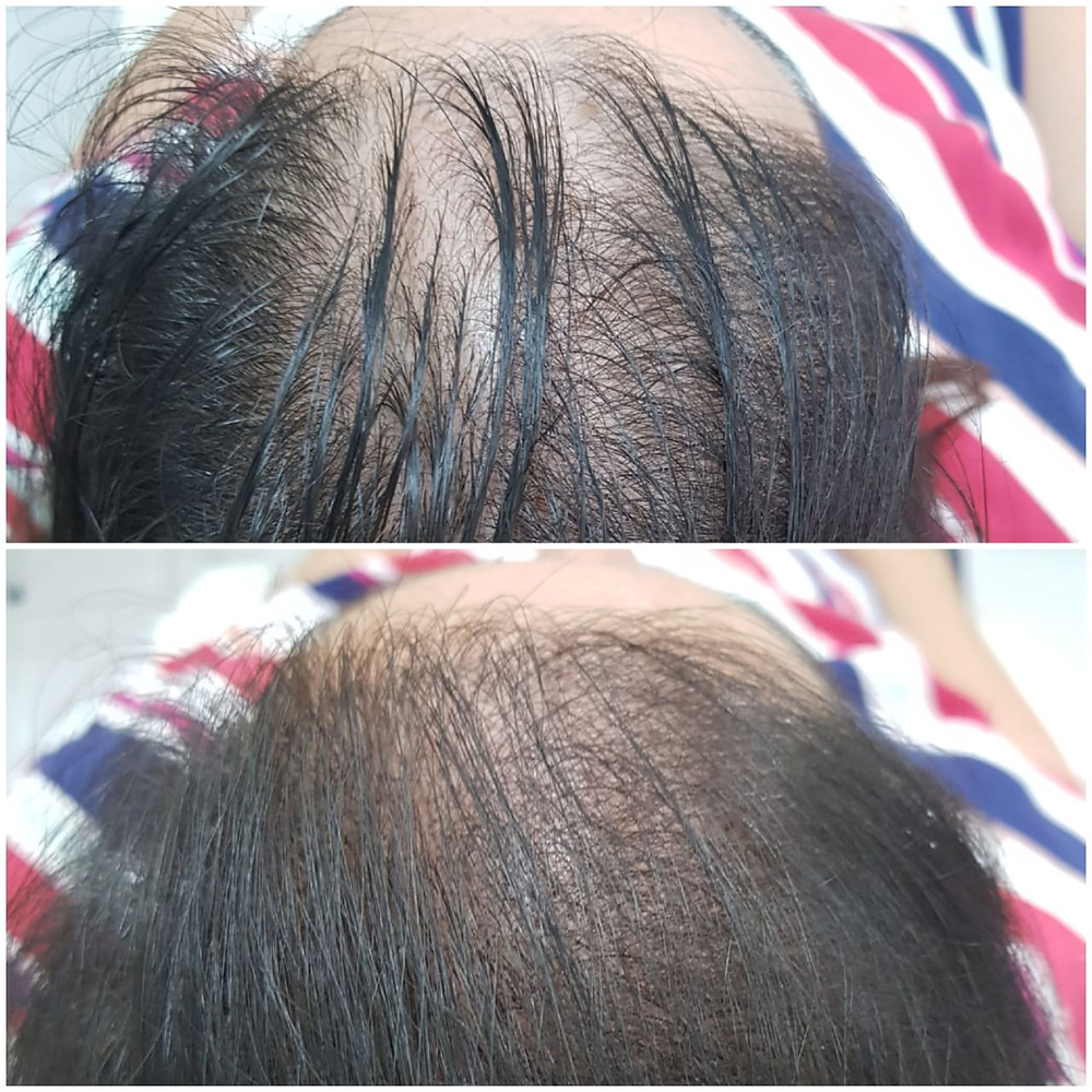 Micropigmentação Capilar - Feminina