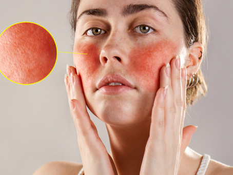 Rosacea/redness? Home-based treatments that make a difference!!