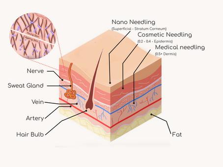 Microneedling 101: Nano, Cosmetic, Medical?