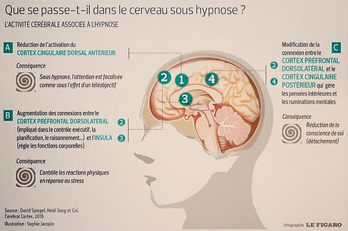 cerveau_sous_hypnose_edited.jpg