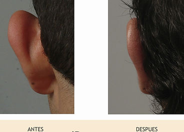 Otoplastía, Dr. Héctor Leal, Clínica iDerma