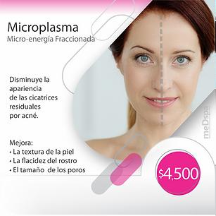 microplasma.png
