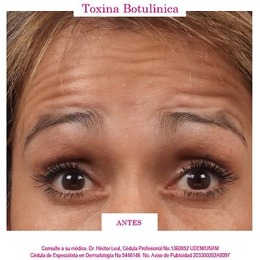BOTOX-ANTES.png, aplicación de botox, líneas de expresión