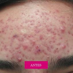 acné antes ydespués, tratamiento para el acné, granos y espinillas