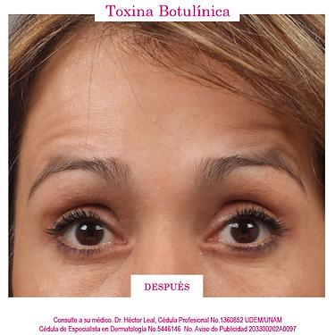 BOTOX-DESPUES.png, aplicación de botox, Dr. Héctor Leal Silva