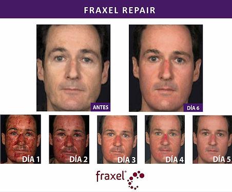 Fraxel repair