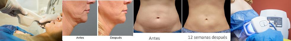 tratamientos-faciales-y-corproales-iderm