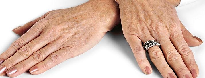 Manchas de la edad, clínica iDerma