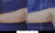 brazo.png