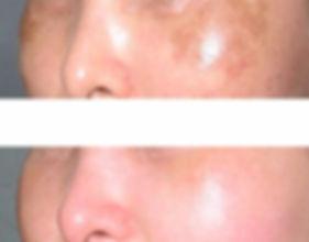 SmoothCool en manchas faciales