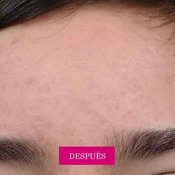ACNE-DESPUES.png tratamiento para acné, granos y espinillas