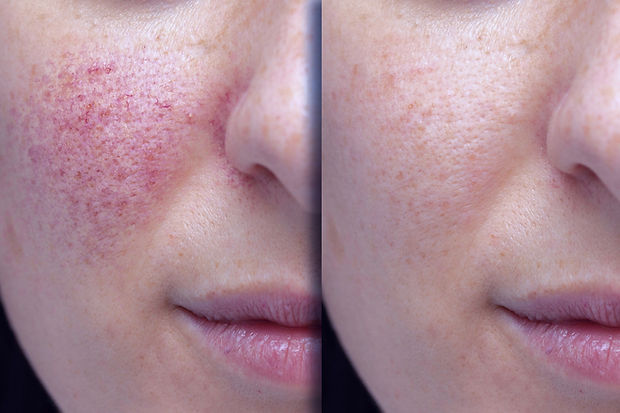 Before%20and%20after%20laser%20treatment%20for%20rosacea%2C%20couperose_edited.jpg