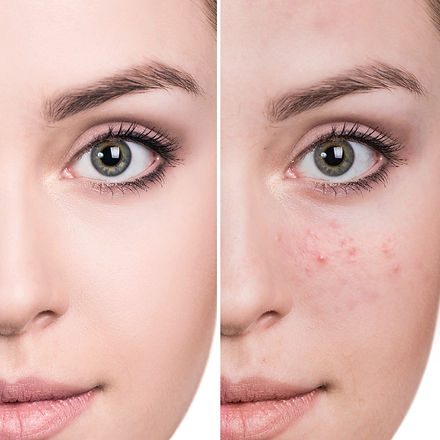 Woman before and after treatment.jpg