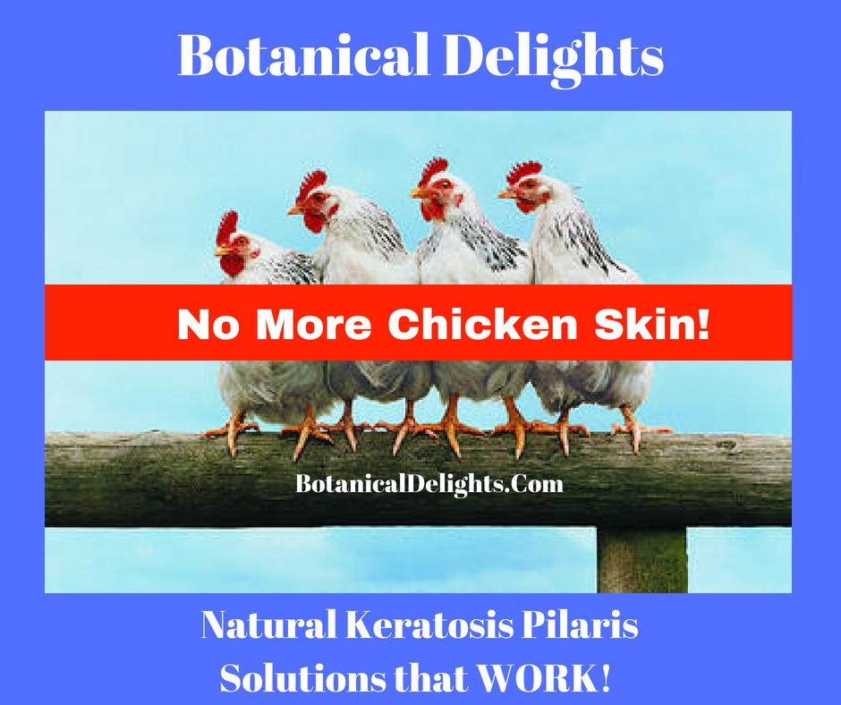 Keratosis Pilaris chicken skin