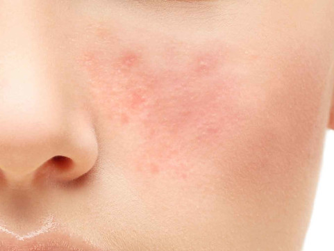 Rosacea Control with Essential Oils