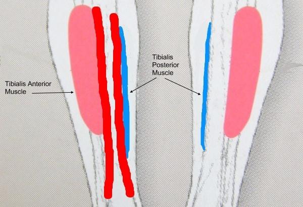 Solution-coureur: renforcer ses chevilles et éliminer les périostites