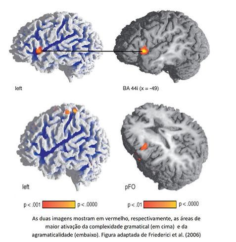 brain ungram.jpg