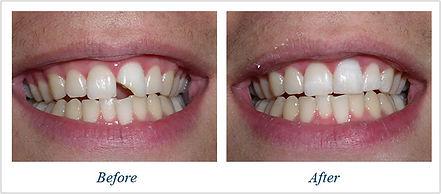 dental crown metro dental of new carroll