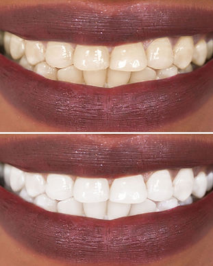 teeth whitening  mentro dental of New Carrollton