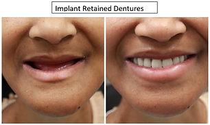 Complete Dentures2.JPG