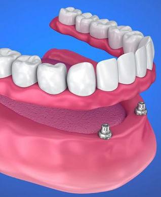 implant retained denture.JPG