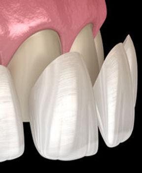 porcelain-veneers.jpg
