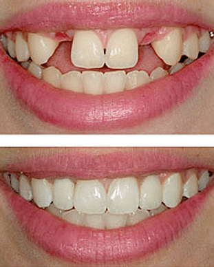 dental-implant-center-tijuana-1.png