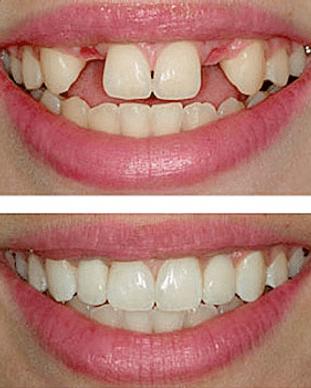 dental-implant-center-tijuana-1.png
