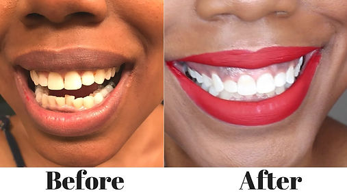 teeth-whitening 2.jpg